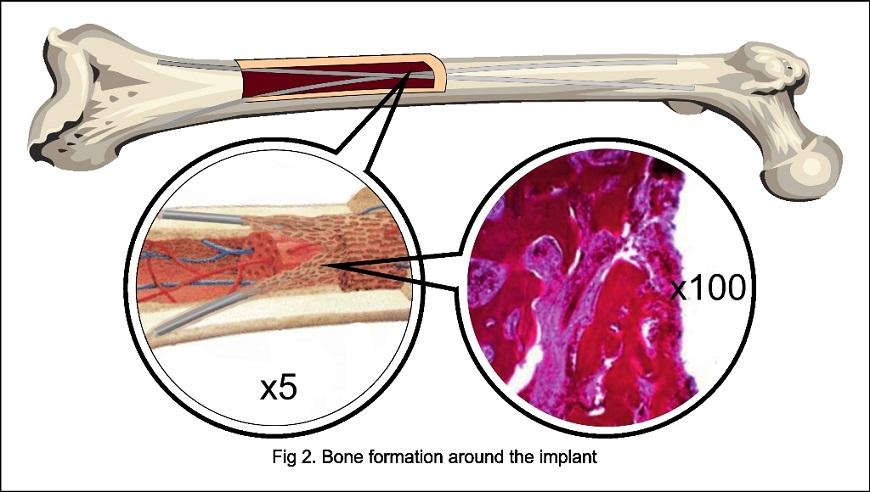 Implants for lel lengthening